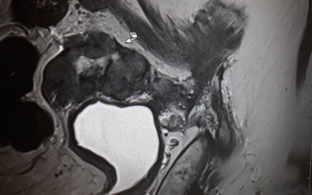 Dr n. med. Salwa z pomocą robota da Vinci usunął nowotwór, który centra onkologii uznały za nieoperacyjny!